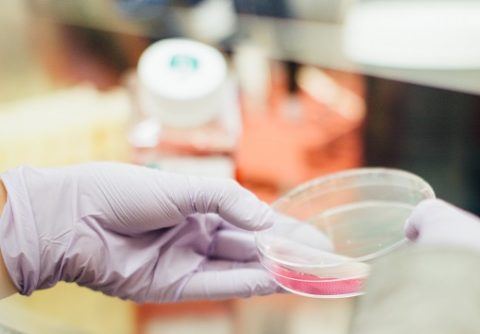 How is Cancer Immunotherapy revolutionising cancer treatment?